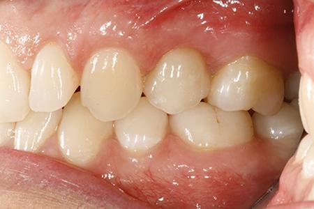 Implant dent - Après